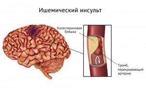 тромб в сосуде мозга