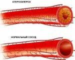 Атеросклероз брюшной аорты