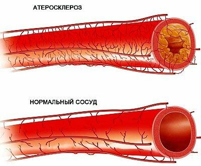 Атеросклероз брюшной аорты: причины, симптомы, диагностика ...