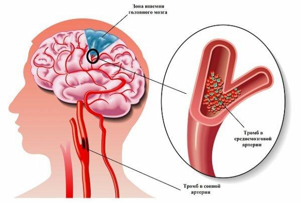 Тромб в сосудах, питающих головной мозг