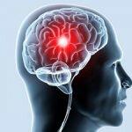 Ишемия мозга