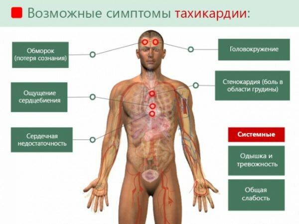 Тахикардия сердца - причины, симптомы, диагностика, лечение и ...