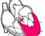 Лечение гипертрофии миокарда левого желудочка