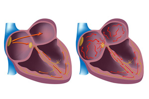 импульсы в сердце