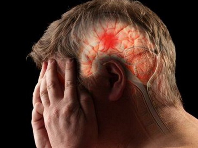 Инфаркт головного мозга - что это такое? Симптомы и последствия