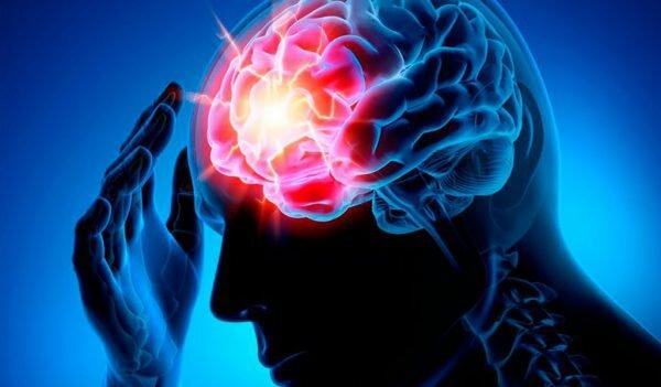 Возникновение ишемического инсульта