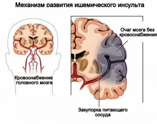 Инфаркт сосудов головного мозга лечение