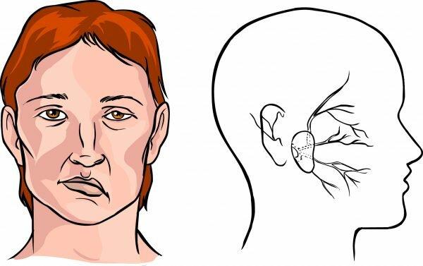 Признаки острого инсульта
