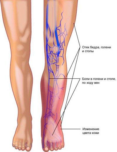 Тромбофлебит легочной артерии: причины, симптомы, лечение