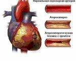 закупоренные артерии
