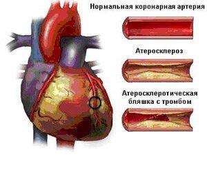 Симптом атеросклероза коронарных артерий