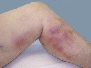 поврежденные вены ног