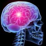 Мозг пораженный инсультом