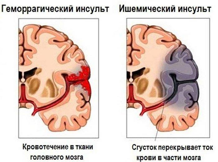 Стволовой инсульт: симптомы, прогноз, лечение, последствия
