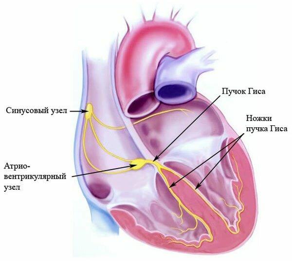 Полная блокада сердца: виды, причины, симптомы, лечение