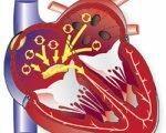 Причины и лечение фибрилляции желудочков