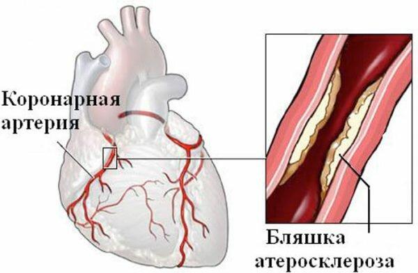 Поражение коронарных артерий атеросклерозом