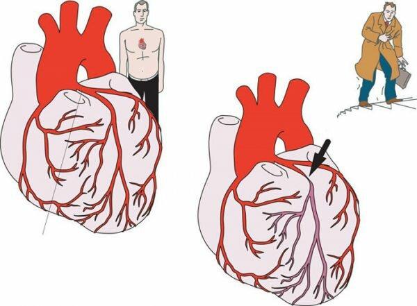 Одной из причин стенокардии, может быть спазм сердца