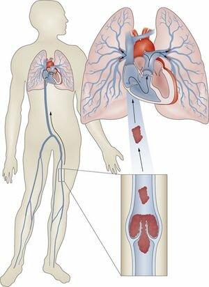 Иногда тромб разбивается, ударяясь о стенки артерии, и закупоривает мелкие ветви сосудов легких
