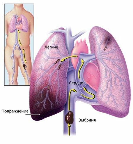 Нарушение тока крови к легким может привести к внезапному летальному исходу