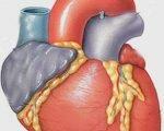 Причины и симптомы токсической кардиомиопатии
