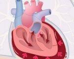 Клинические проявления и лечение тампонады сердца