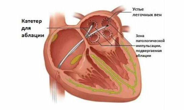 Абляция сердца: подготовка, показания и противопоказания, осложнения