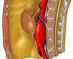 Резекция (протезирование) брюшной аорты при аневризме