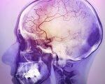 сужение сосудов в мозге человека
