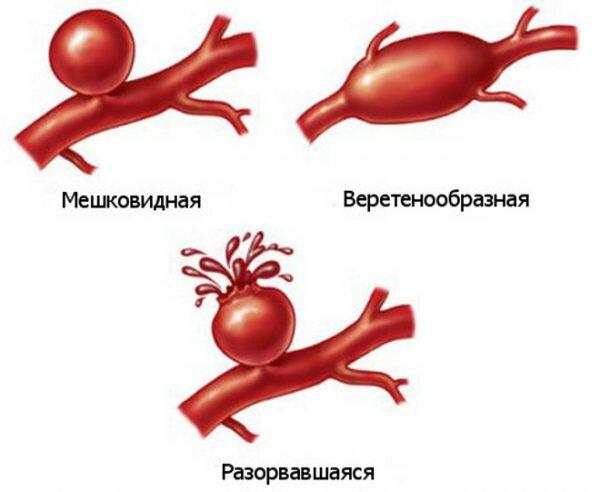 разрыв аорты симптомы