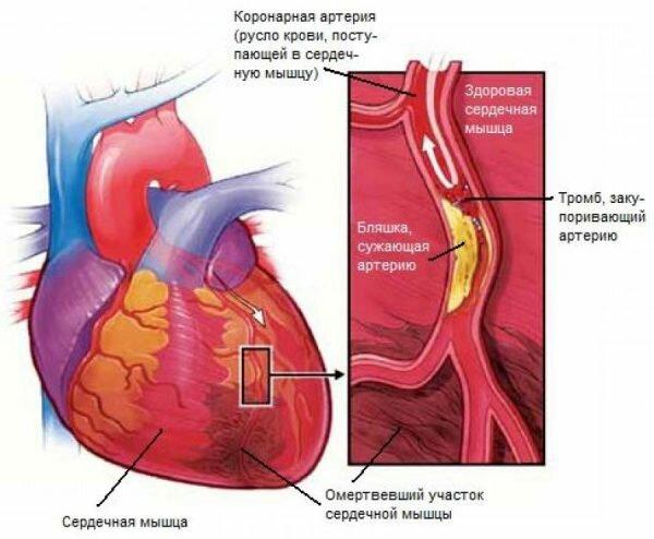 Плохое кровоснабжение сердца