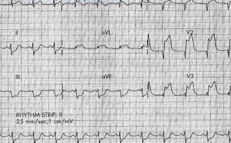 ЭКГ при рецидивирующем инфаркте миокарда