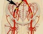 Окклюзия подвздошных артерий