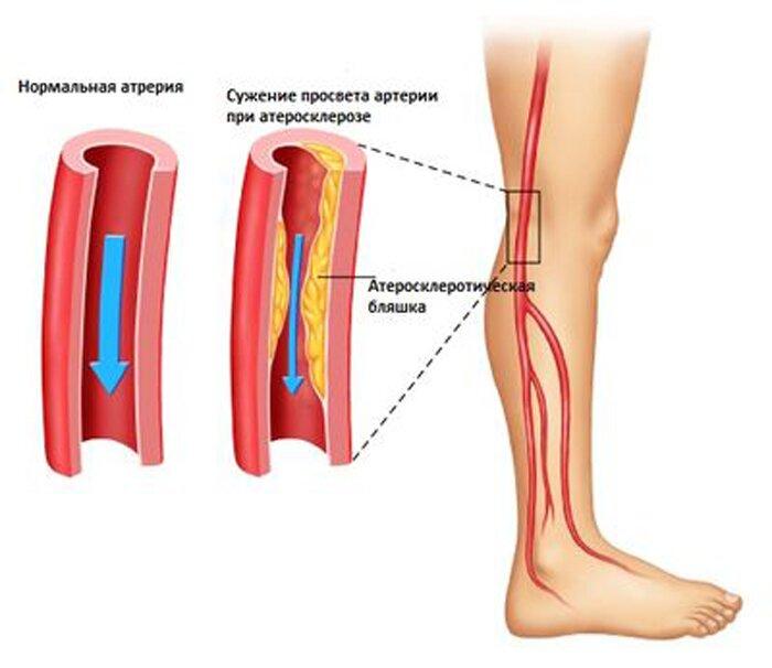 Окклюзия артерий - виды, причины, симптомы, диагностика и лечение