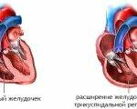 Симптомы и лечение регургитации трикуспидального клапана