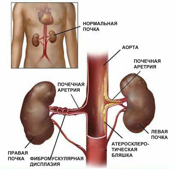 Причины вазоренальной гипертензии