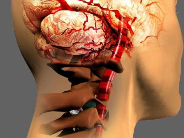 Венозная дисциркуляция головного мозга лечение