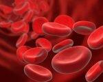 Болезнь Маркиафавы-Микели (пароксизмальная ночная гемоглобинурия)