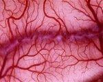 Нарушение микроциркуляции крови и средства для ее улучшения