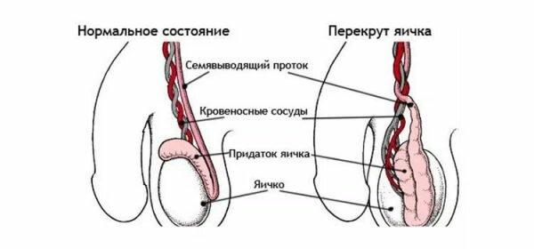 Болит яичко после операции варикоцеле: причины и профилактика ...