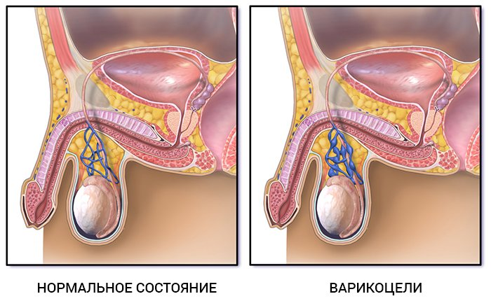Что нельзя делать после операции варикоцеле