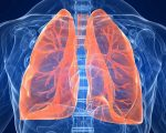 Склероз легочных артерий